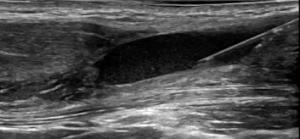 Behandling-av-muskelskada-med-EPI_1-300x139.png