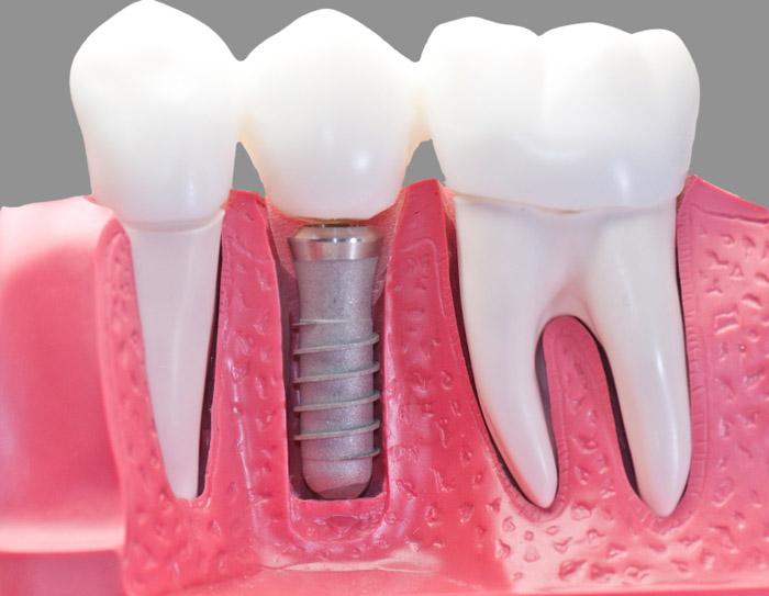 prosthodontist-new-york.jpg