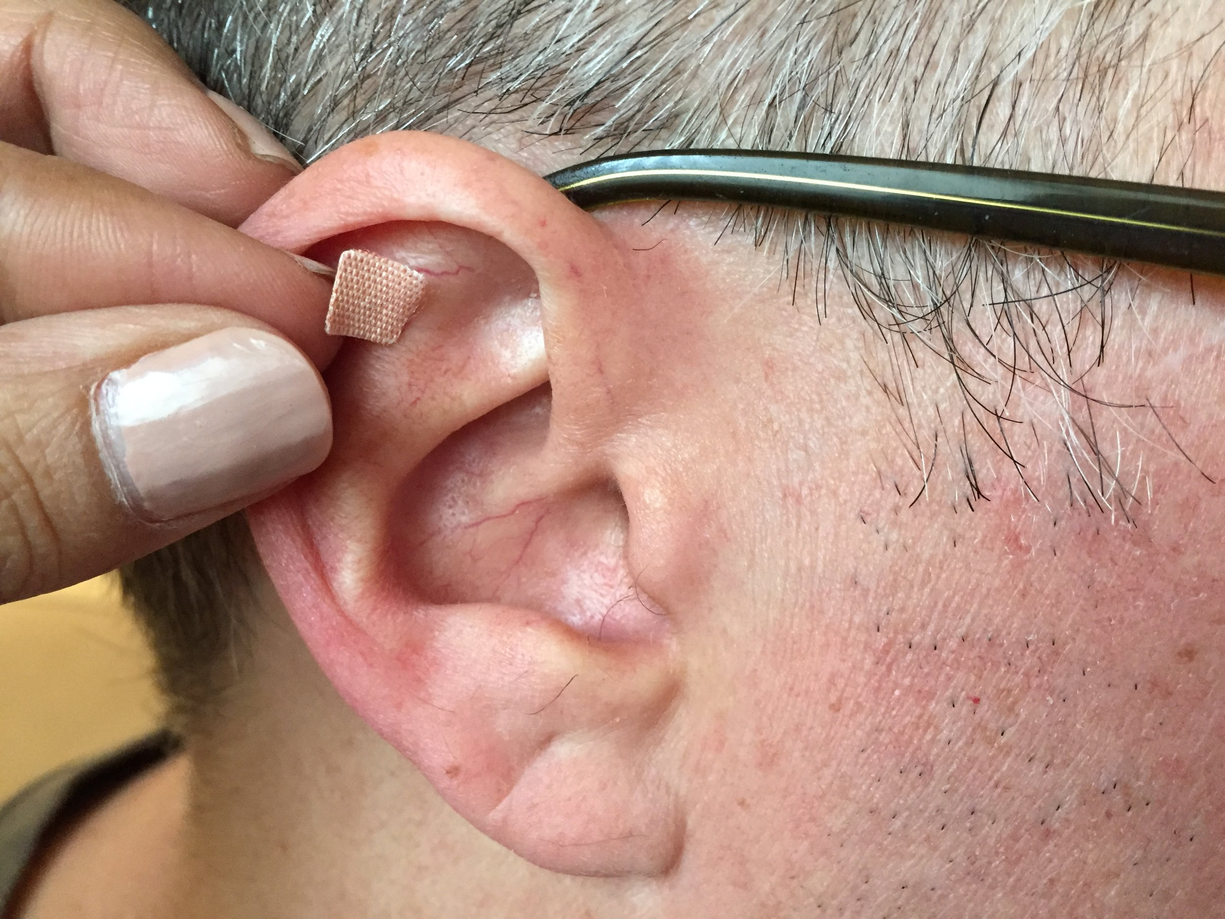 Vaccaria seeds can be applied to any point on the body, but because they are commonly applied to one of the hundreds of points on the ear, they are often referred to as earseeds.