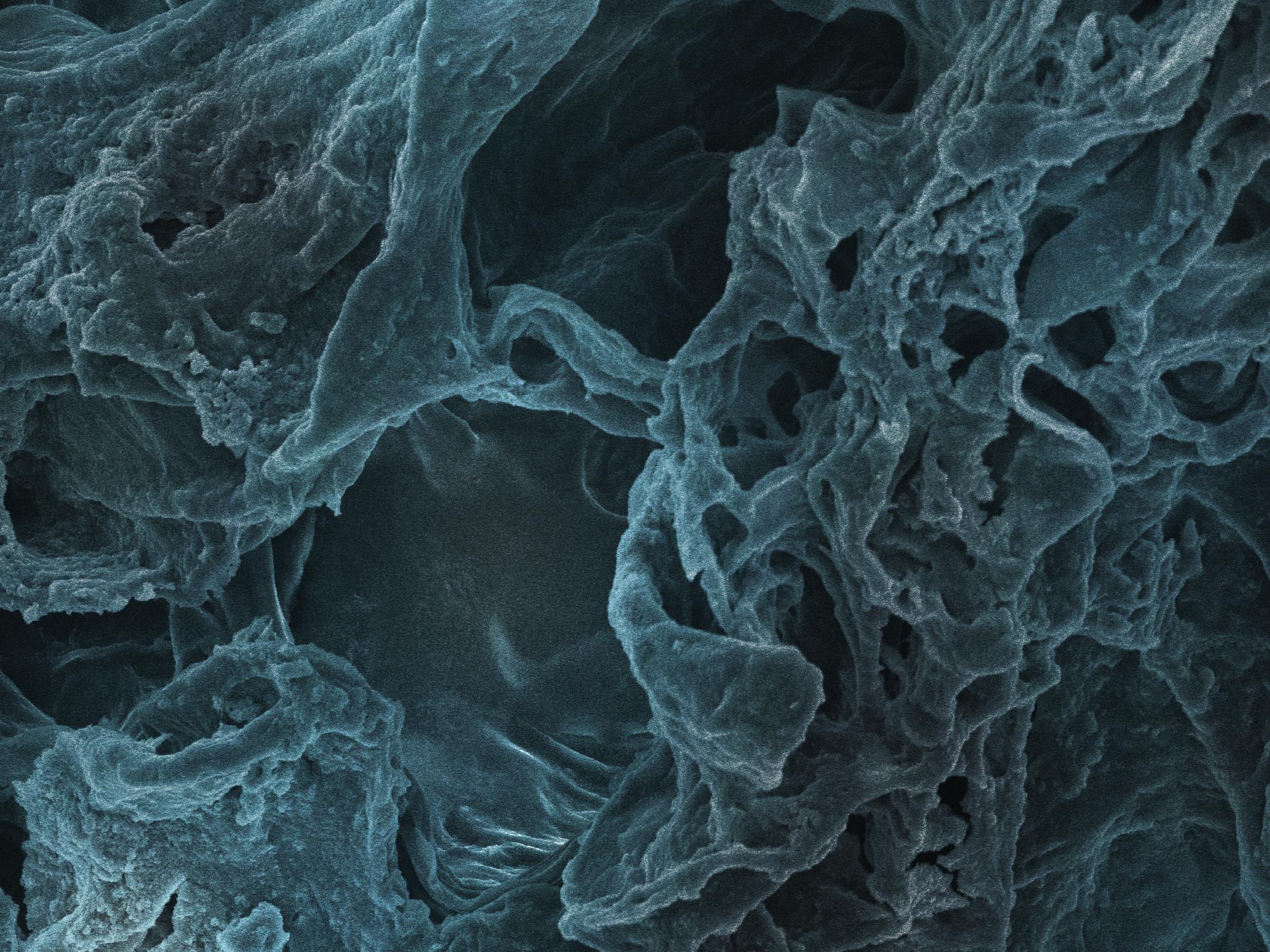 Anturium SEM image