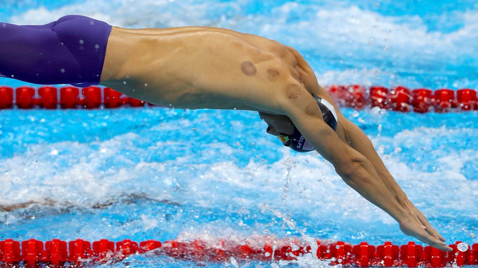 http://mashable.com/2016/08/08/what-science-says-cupping-phelps-rio/#EflEm8oSAaqa