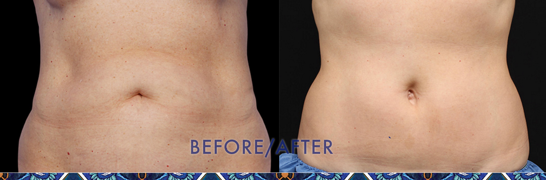 Lose belly fat with CoolSculpting