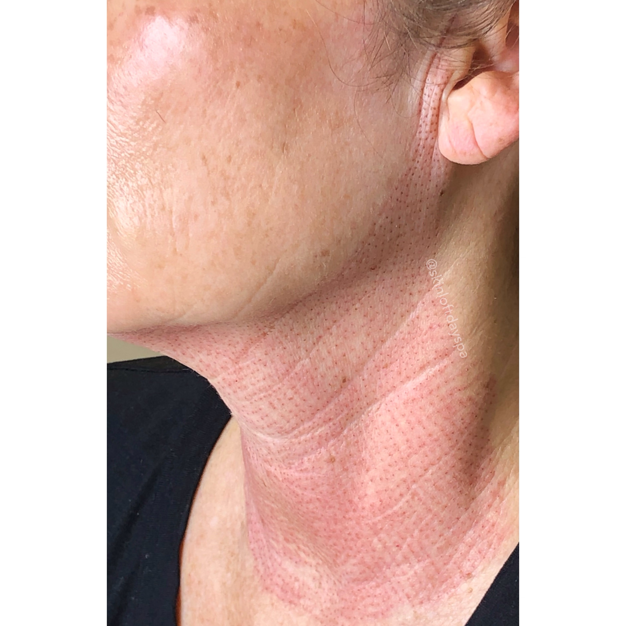 Fibroblast Neck Lift and Ear Wrinkle Lift