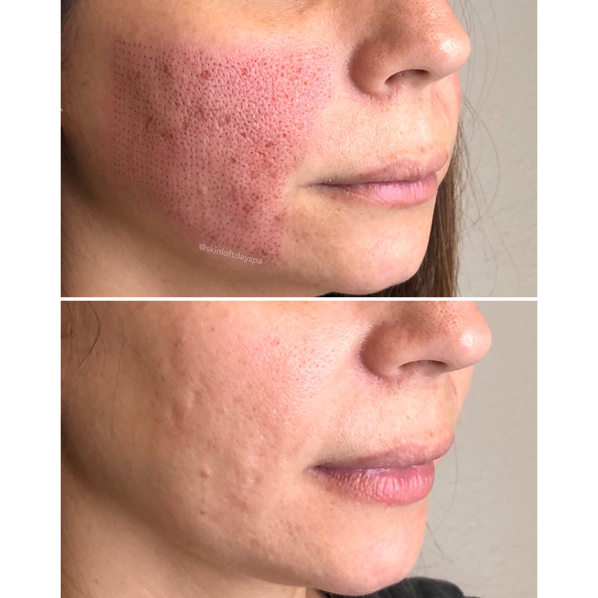 Fibroblast Treating Acne Scarring