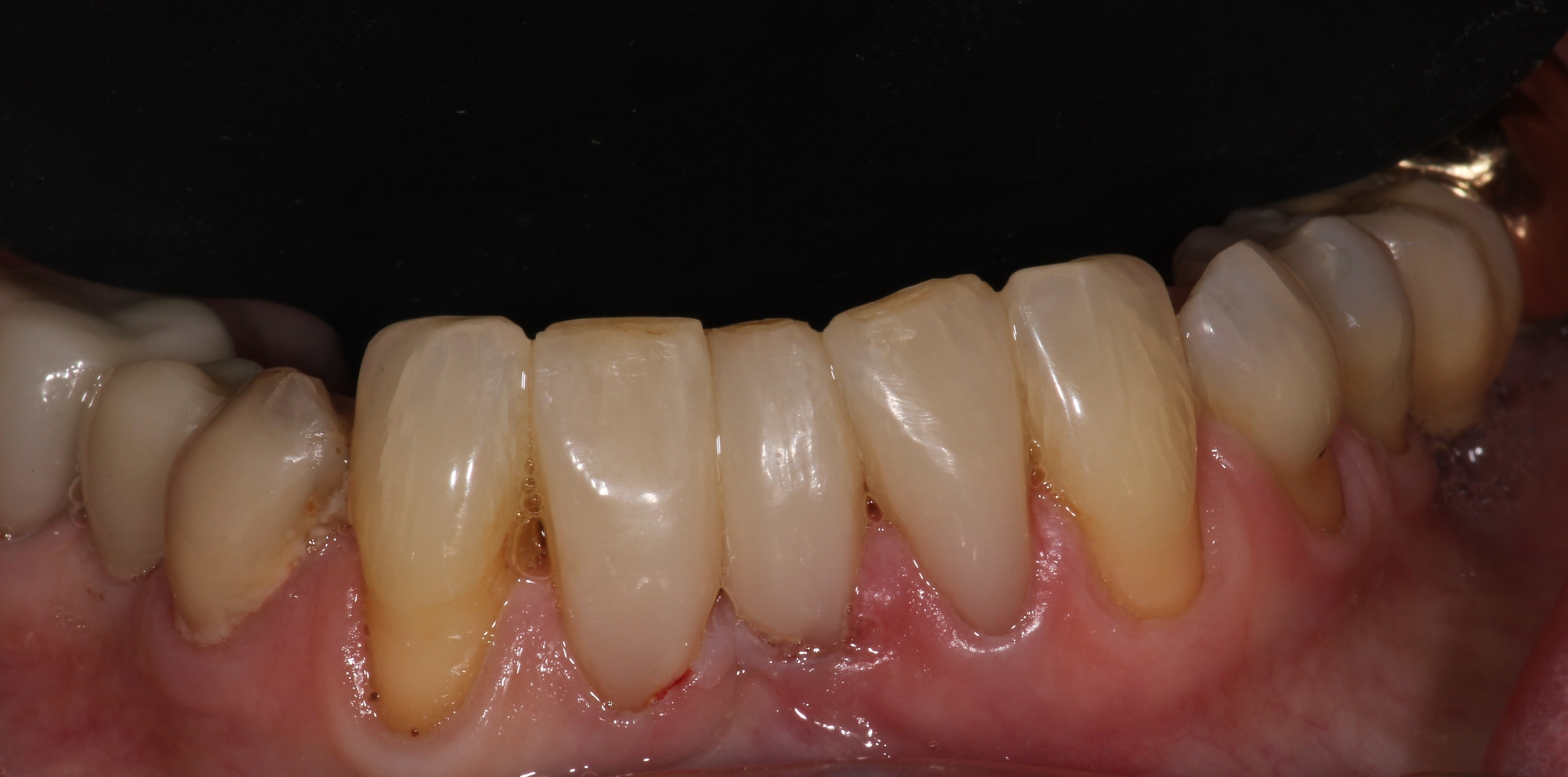 After (White Fillings)