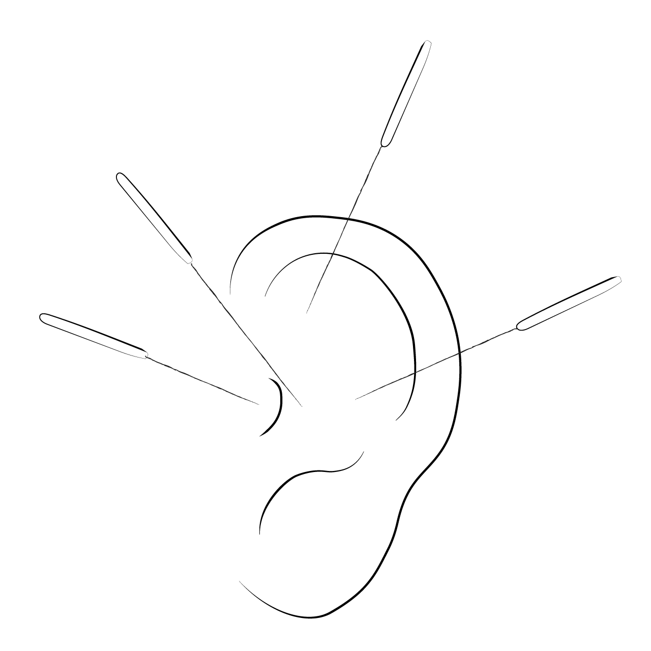Ear acupuncture illustration