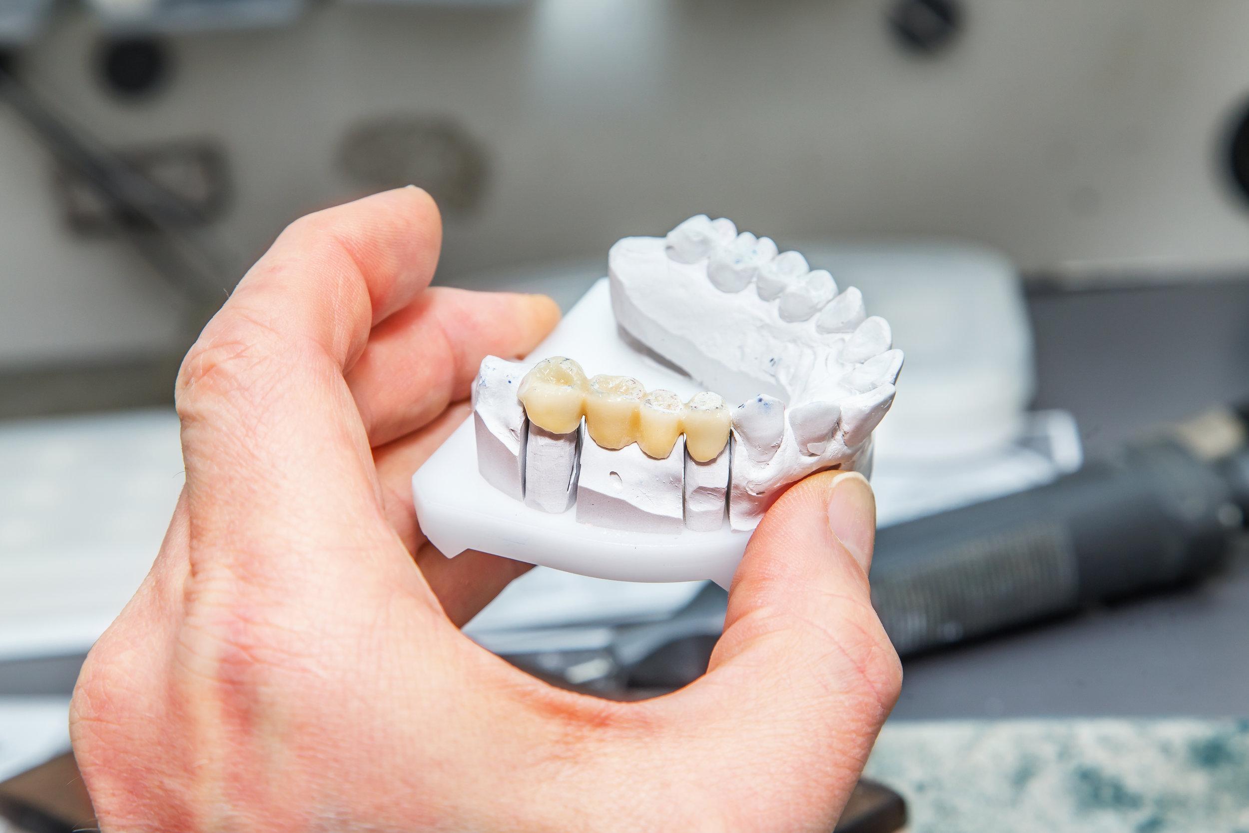 dental_bridge.jpeg