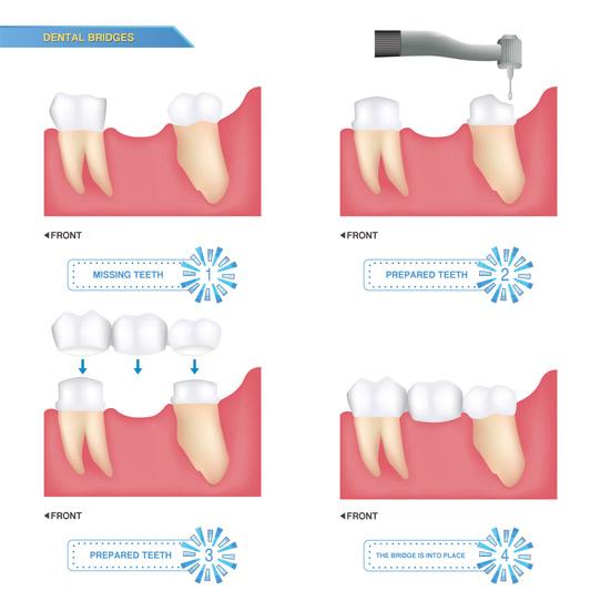 dental_bridge.jpg