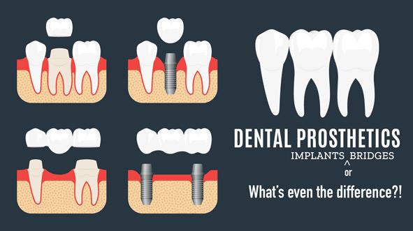 tooth-implant-vs-bridge.jpg