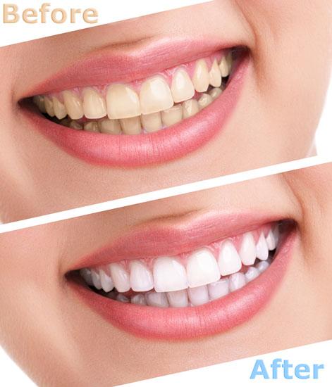 do-teeth-whiteners-work.jpg