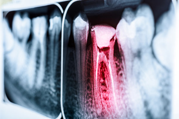 root-canal-causes.jpg
