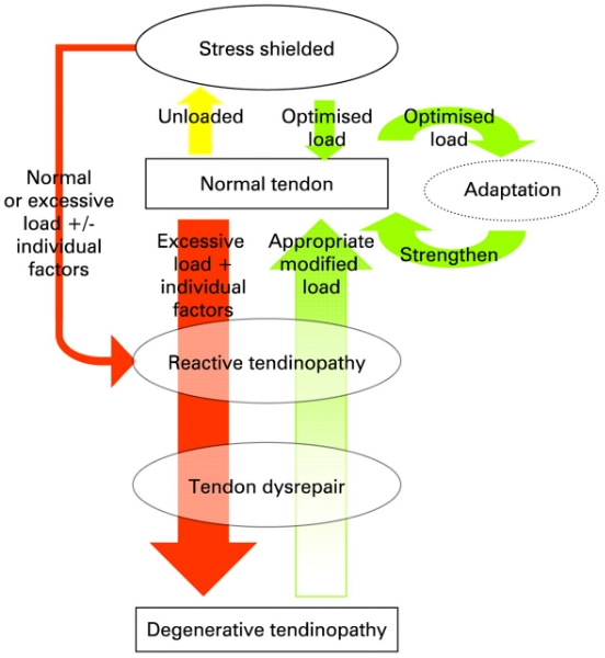 Tendonopathy flow chart.