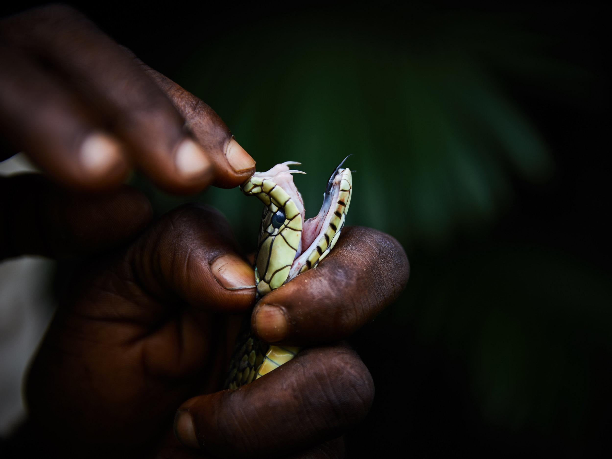Snakebite Envenomation: A Global Health Crisis.