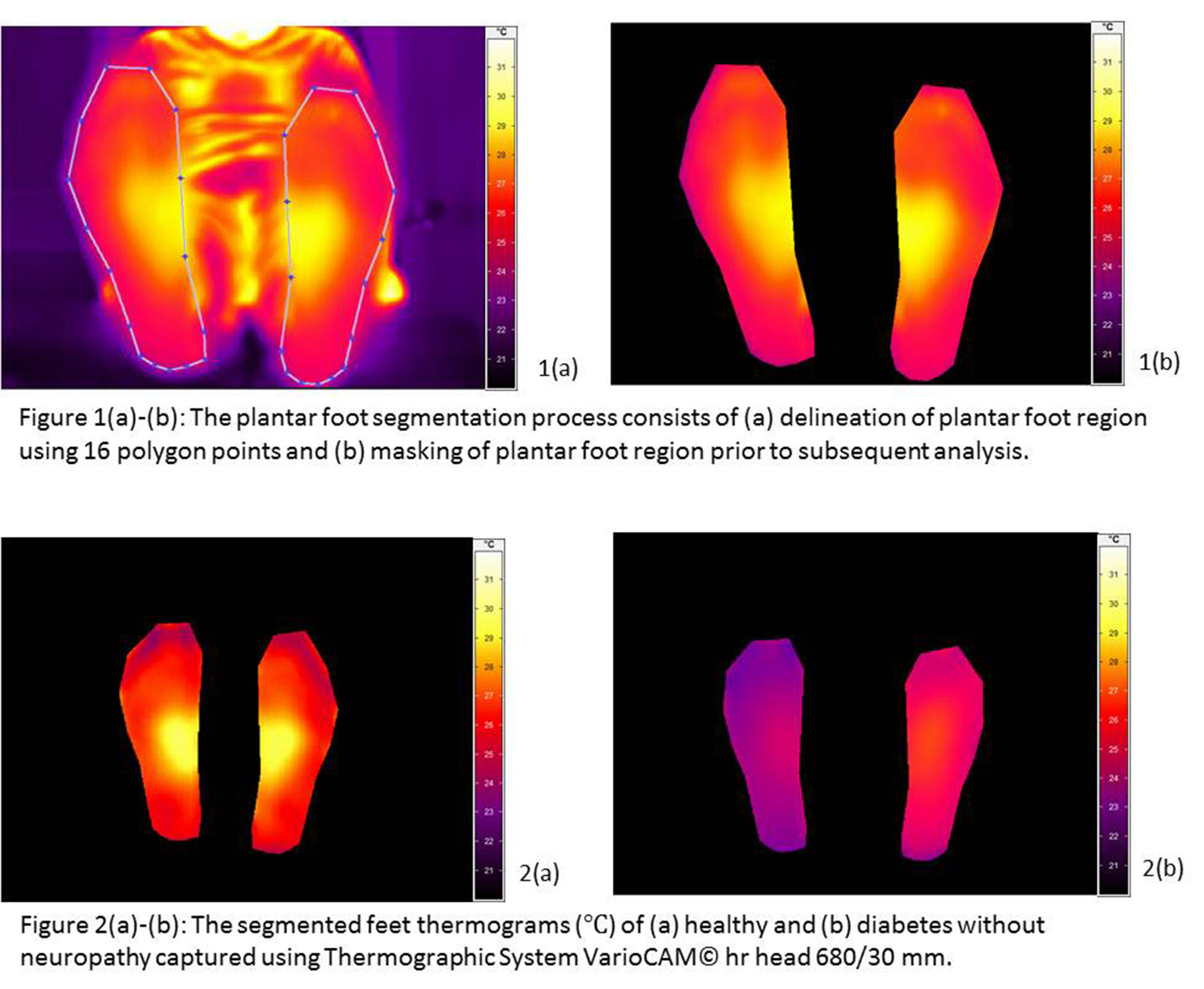Diabetic Foot Thermograpghy.jpg