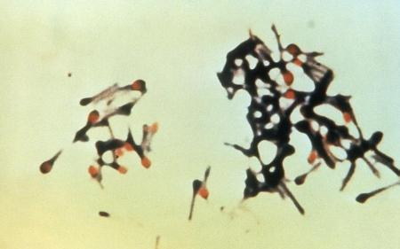 Micrograph of tetanus bacteria          Centers for Disease Control