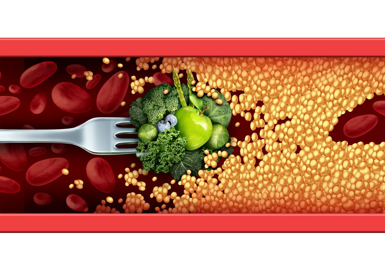 Sunt kosthold og fysisk aktivitet daglig kan minske sjansen betraktelig for å få blodpropp.