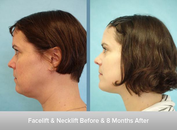BFacelift-+-Necklift-Before-&-3-Weeks-After-2.jpg
