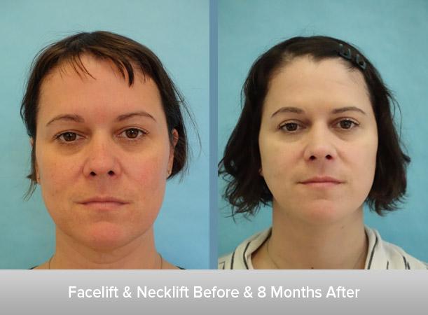 BFacelift-+-Necklift-Before-&-3-Weeks-After.jpg