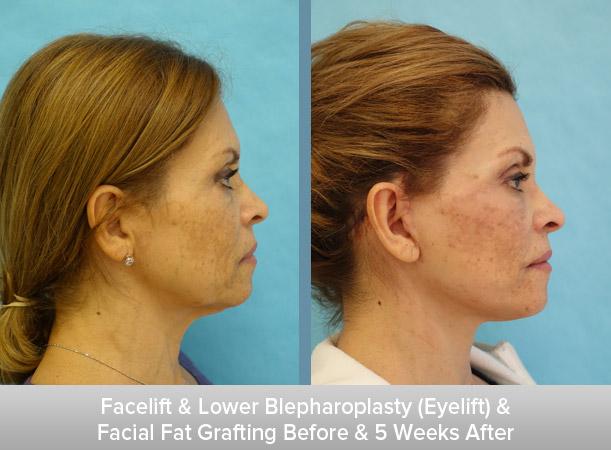 Facelift-+-Lower-Blepharoplasty-(Eyelift)-+-Facial-Fat-Grafting-5-Weeks-After-2.jpg