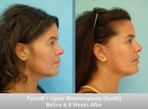 Facelift-+-Upper-Blepharoplasty-(Eyelift)-8-Weeks-After-2.jpg