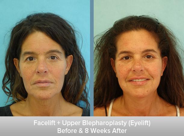 Facelift-+-Upper-Blepharoplasty-(Eyelift)-8-Weeks-After.jpg