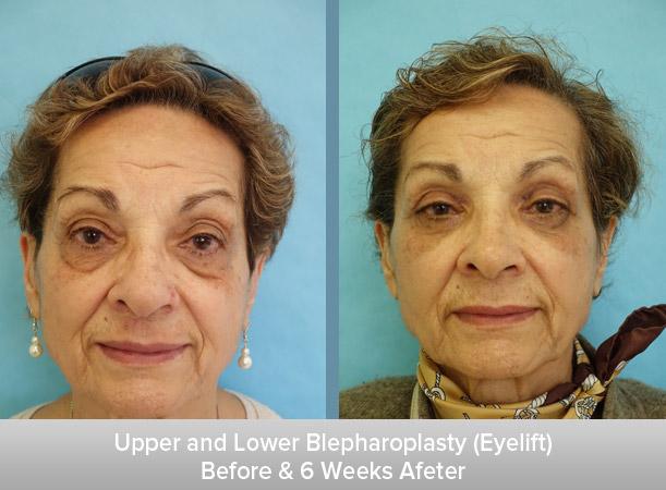 Upper-and-Lower-Blepharoplasty-(Eyelift)-6-Weeks.jpg