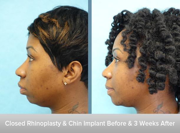 Closed-Rhinoplasty-+-Chin-Implant-2.jpg