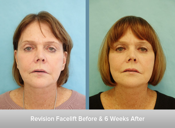 Revision-Facelift-and-After.jpg