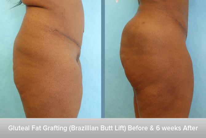Gluteal-Fat-Grafting-(Brazillian-Butt-Lift)-6-weeks-After-2.jpg