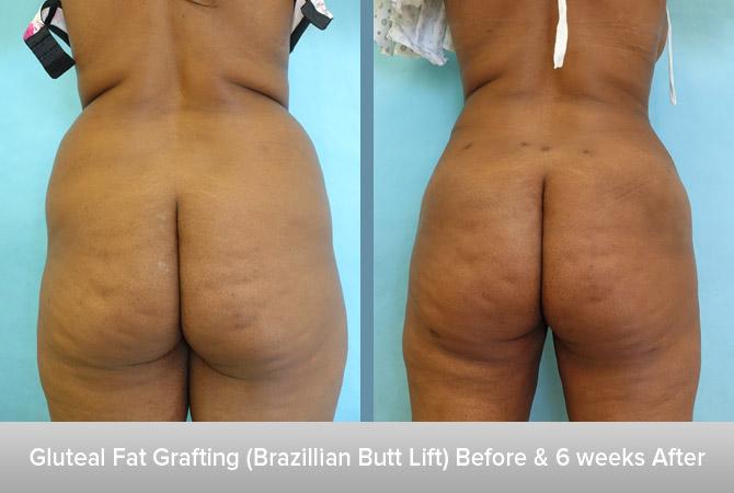 Gluteal-Fat-Grafting-(Brazillian-Butt-Lift)-6-weeks-After.jpg