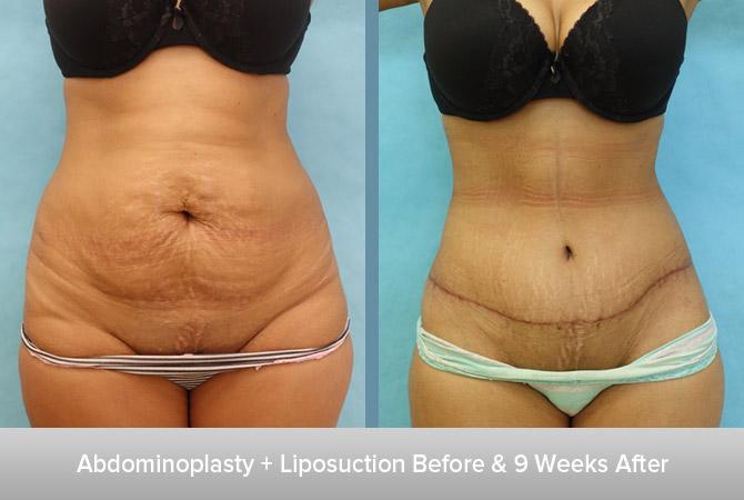 Abdominoplasty-+-Liposuction-3-9-Weeks-After.jpg