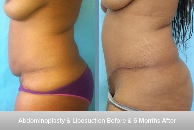 Abdominoplasty-+-Liposuction-2-6-Months-After.jpg