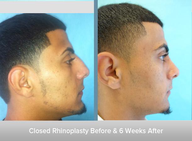 Closed-Rhinoplasty-6-Weeks-After.jpg