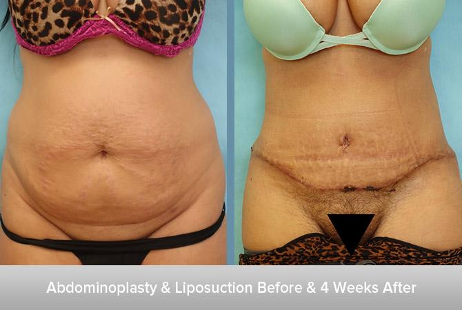 Abdominoplasty-&-Liposuction-Before-&-4-Weeks-After.jpg