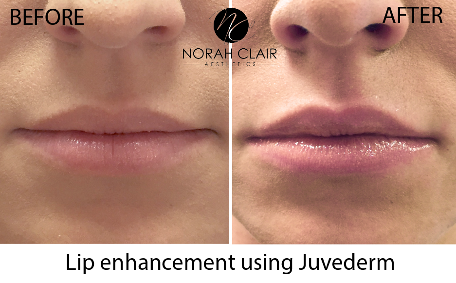 juvaderm-before-after.png