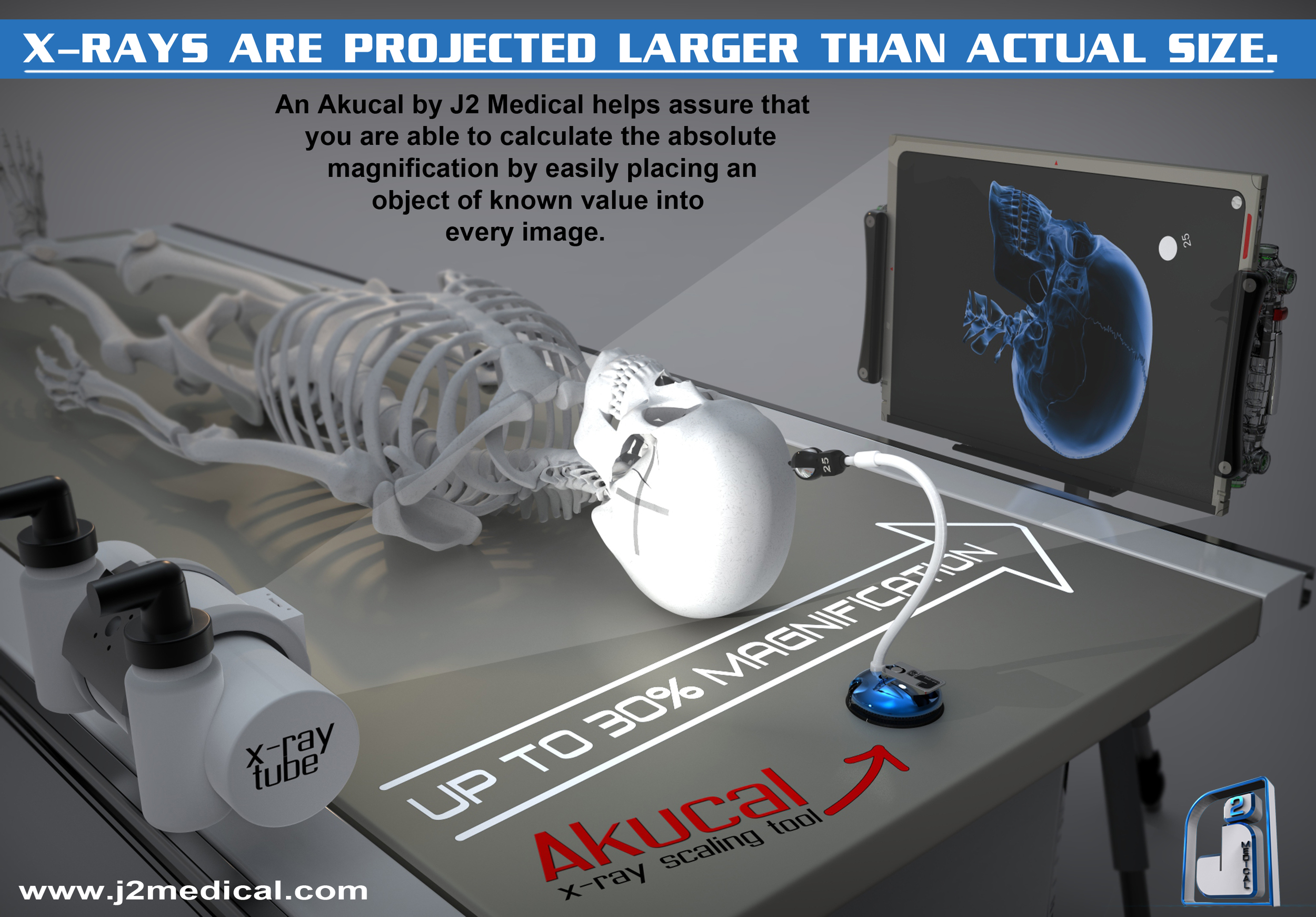 An Akucal by J2 Medical helps assure that you are able to calculate the absolute magnification by easily placing an object of known value into every image.