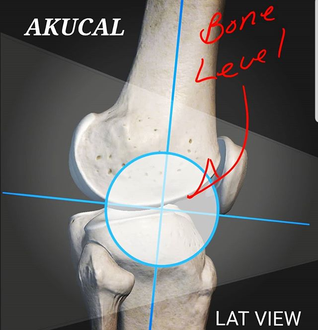 Scaling your x-ray begins with placement.  The center of the Akucal's marker is placed as closely as possible to bone level. That's the secret and we've made it effortless to do. Buy Akucals directly from the source at J2Medical. Try one until it pays for itself in savings and then take pleasure in sending us your gratitude.  Literally... tell us that.  #xraygraffiti #haveanicexray #orthopedicsurgery #surgeon #surgeonlife #orthopedic #orthopeadic #magnification #magfactor #veterinarysurgery #orhopedicsoftware #xray #xrayscaling #j2marker #akucal #j2medical #magmarker #3dprint #hipreplacement #jointreplacement #medical #orthoclinic #radiography #xraymagnification #doctor #radtech #radiology #radiologylife #jarridhenderson