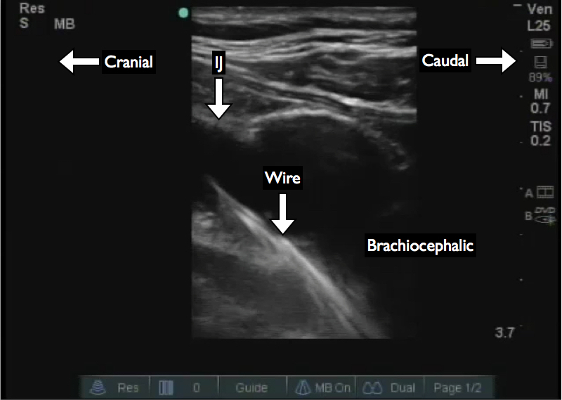 Figure 1: View of the wire in the brachiocephalic vein. This probe does not have a low enough frequency and maximal depth to adequately view the superior vena cava in this patient. The probe is placed lateral and posterior to the clavicular head of the sternocleidomastoid muscle and directed toward the contralateral nipple.
