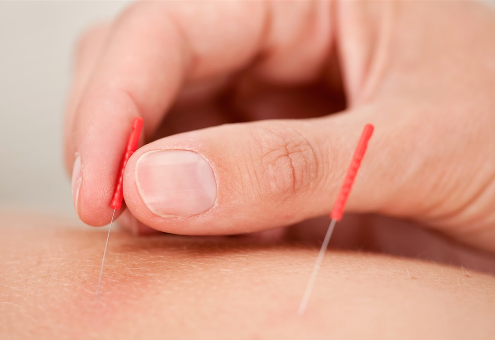 Acupuncture+Screen+Grab.png