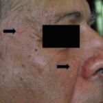 sebaceous-hyperplasia-1-150x150.png