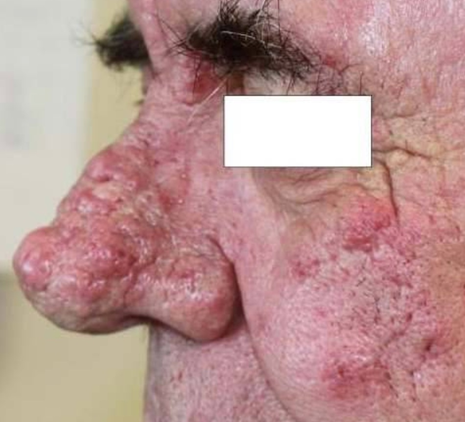 http://www.pcds.org.uk/clinical-guidance/rosacea#!pp[g1]/14/