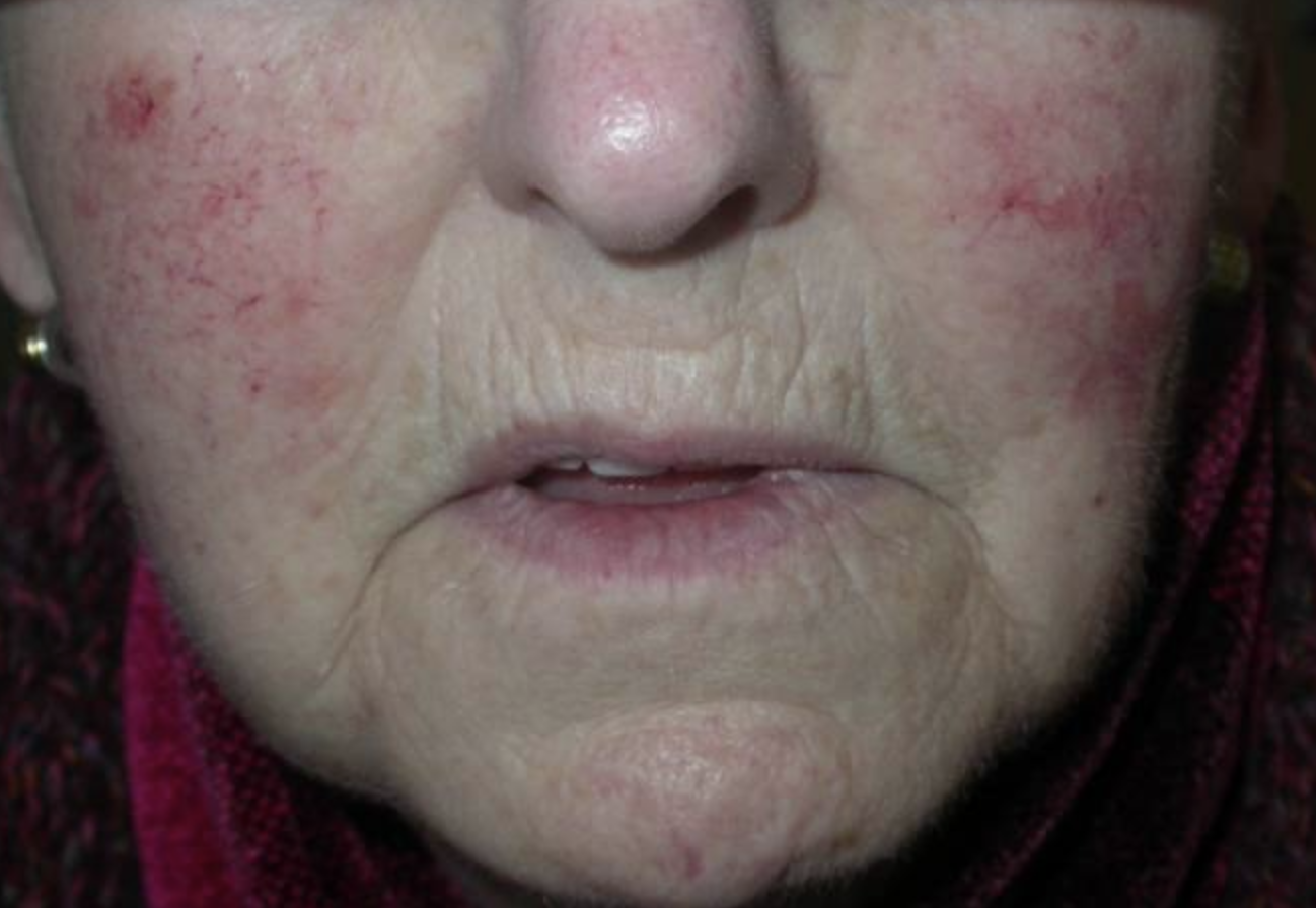 http://www.pcds.org.uk/clinical-guidance/rosacea#!pp[g1]/8/