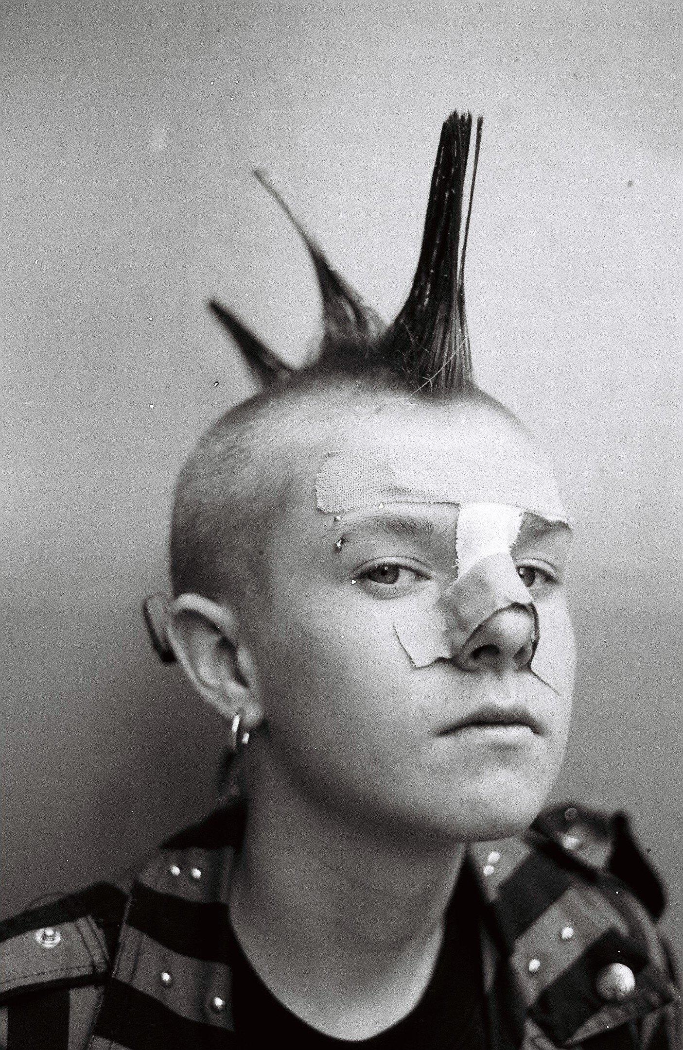 ARCHIVE  - The Broken Nose Boy © Peter Paul Hartnett