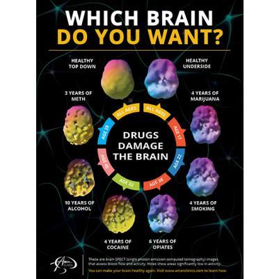 Faiths brain.jpg
