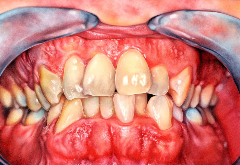 Teeth_AshleyBryant.jpg