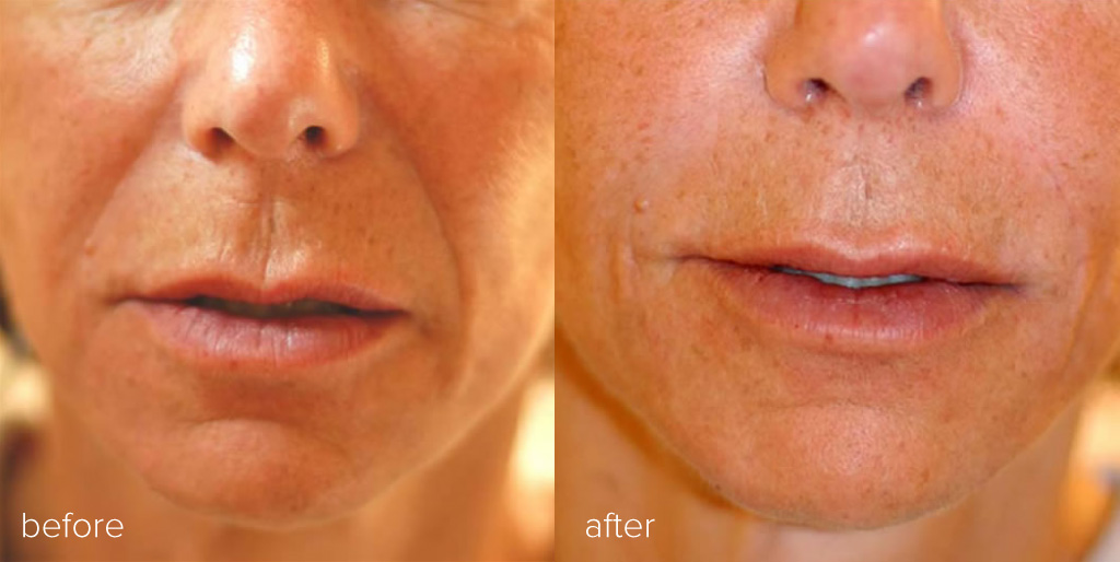 dermal fillers lips mouth