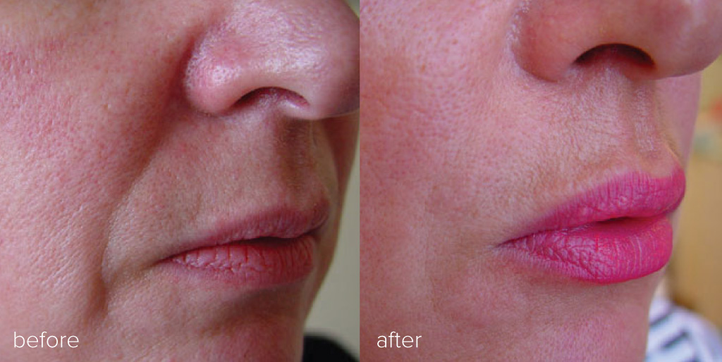 dermal filler results