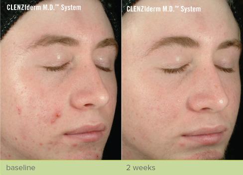 revive-cosmetics-obagi-nu-derm-cenziderm-mdsystem