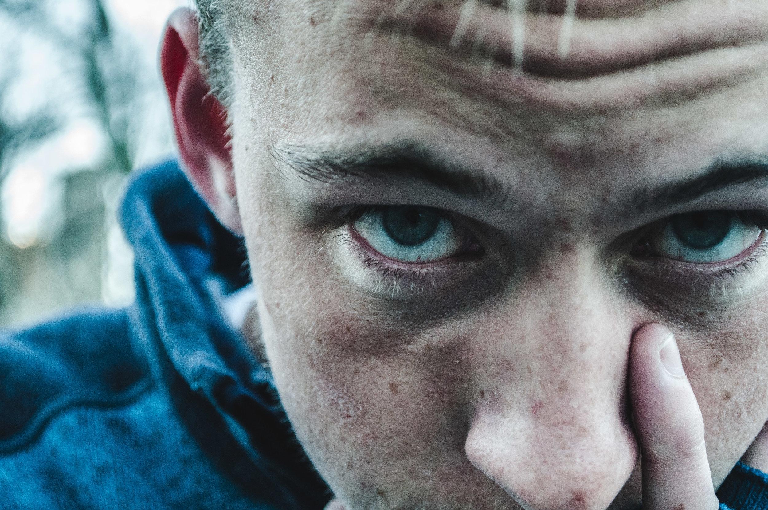 Colin Eye.jpg