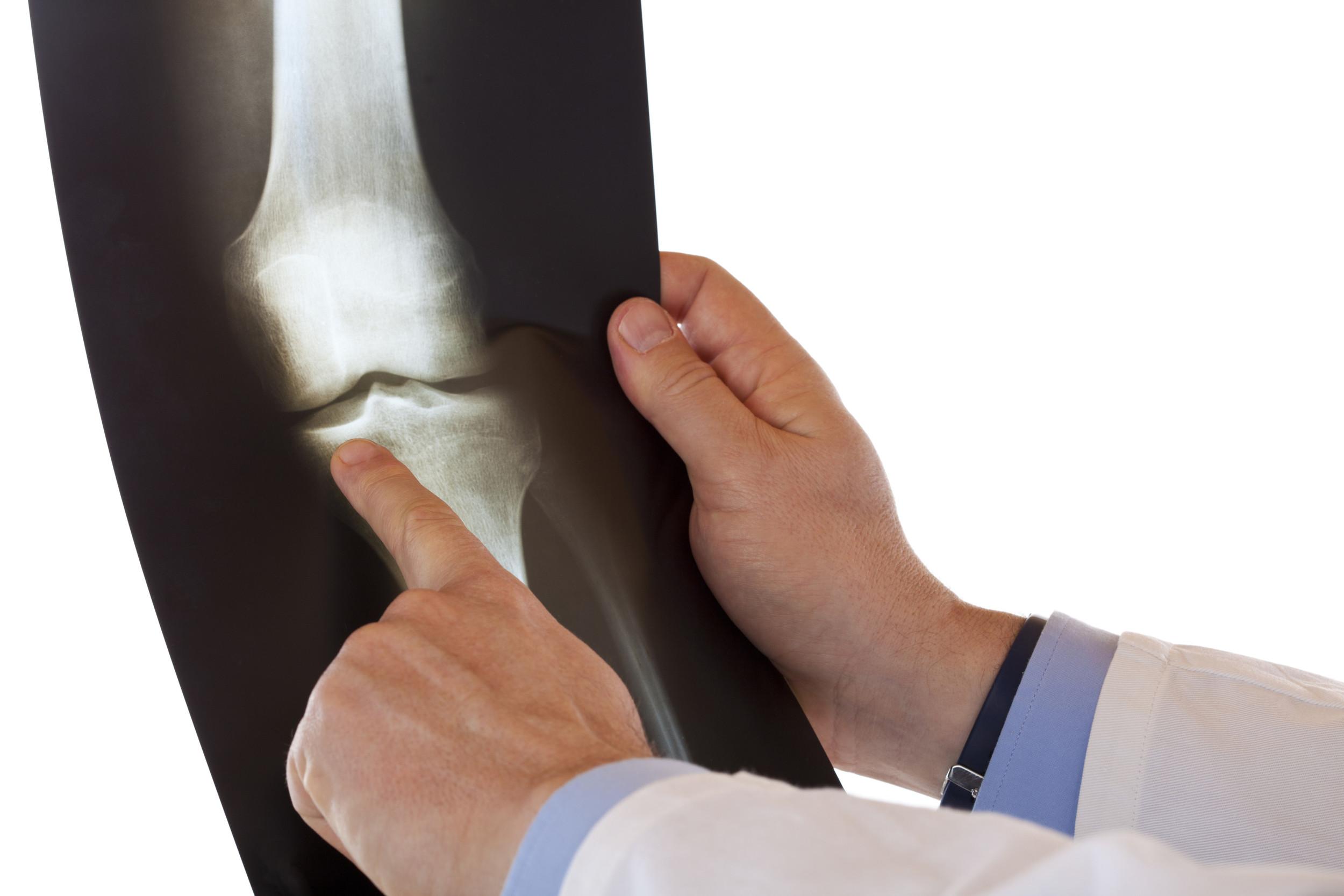 ortho-surgeon